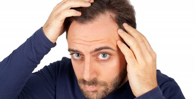 Nowy rewolucyjny środek na łysienie