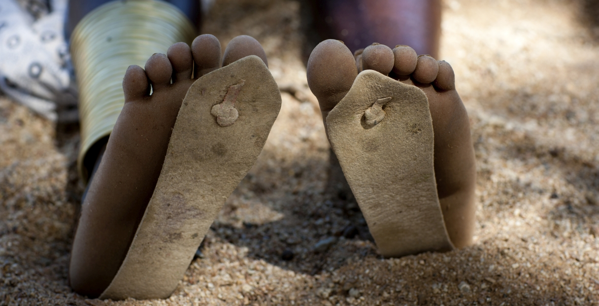 Angola, południowa Afryka. Dziewczynka w zbyt małych klapkach