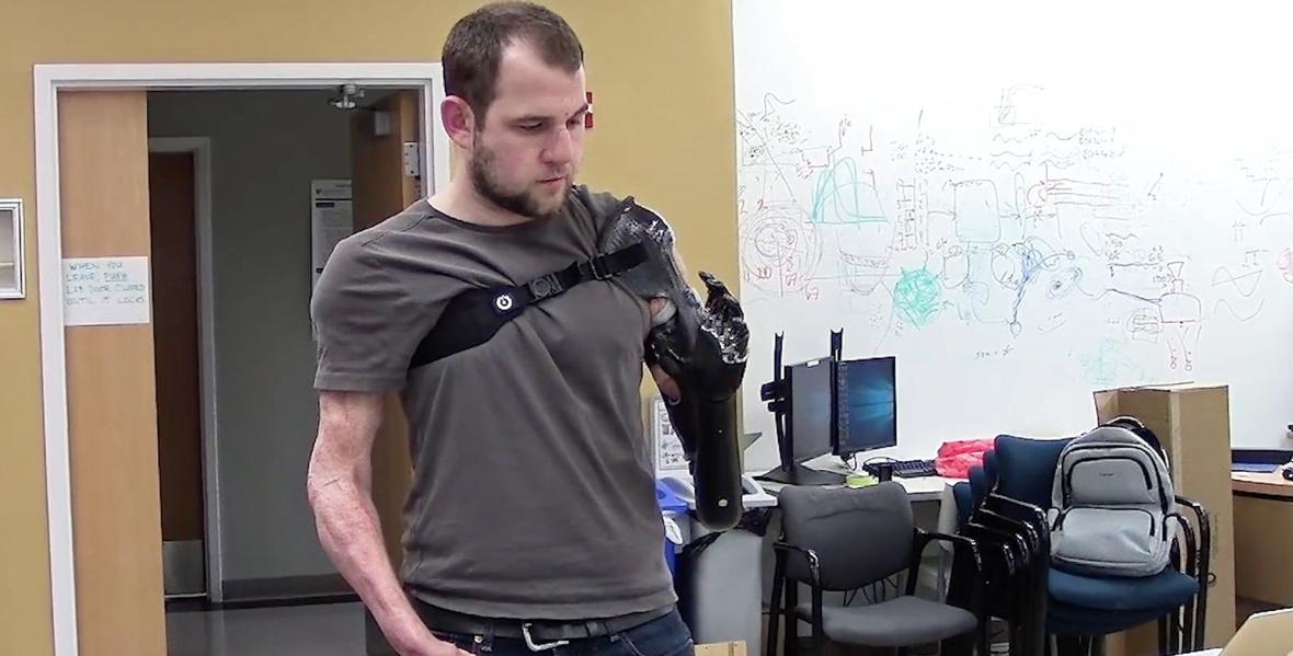 Mężczyzna po amputacji ręki testuje bioniczną kończynę