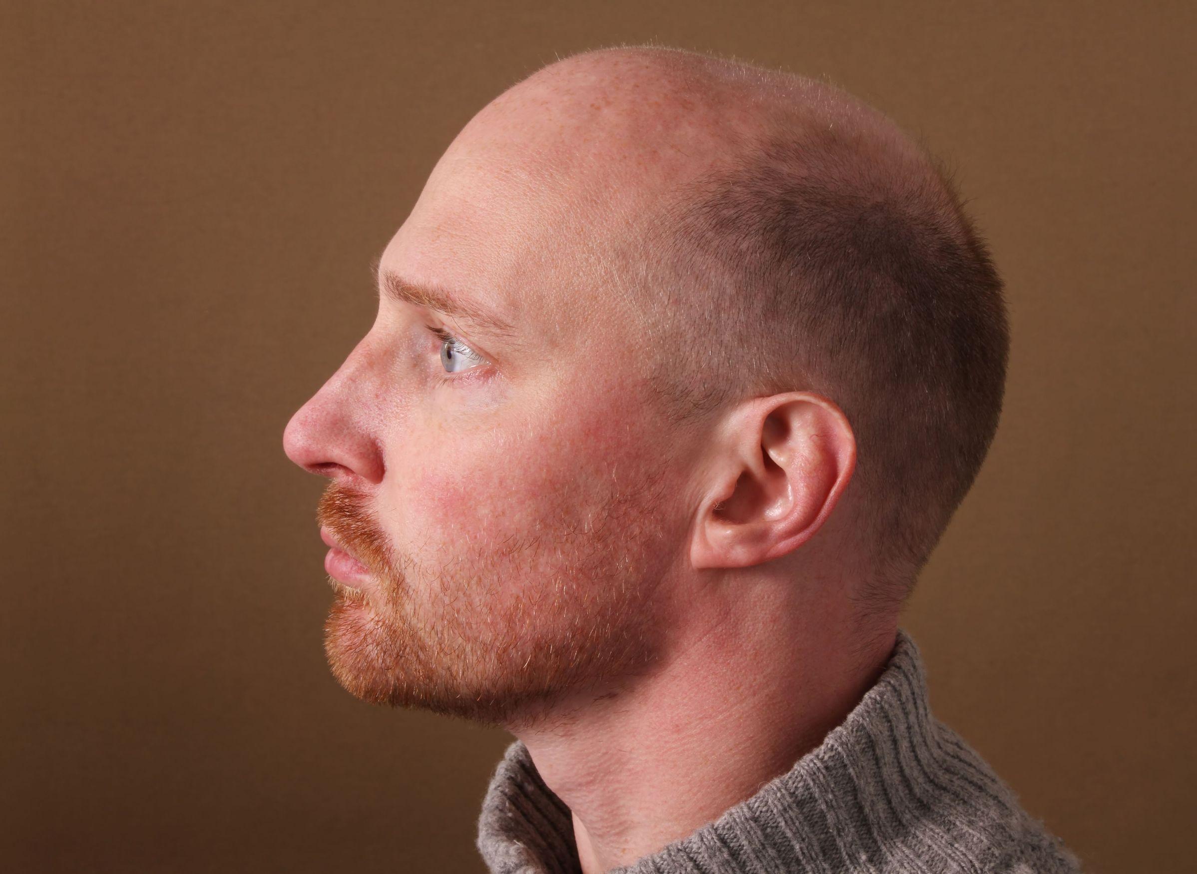 wypadanie włosów z cebulkami u mężczyzn